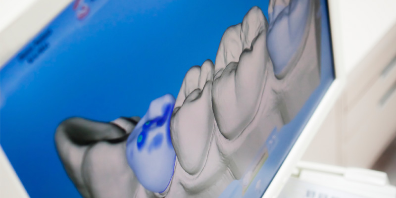 Digital X-ray Of Human Teeth - Dental Laboratory in Bolton